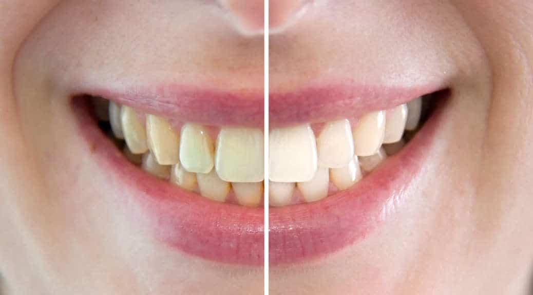 Sbiancamento dei denti? Si grazie!