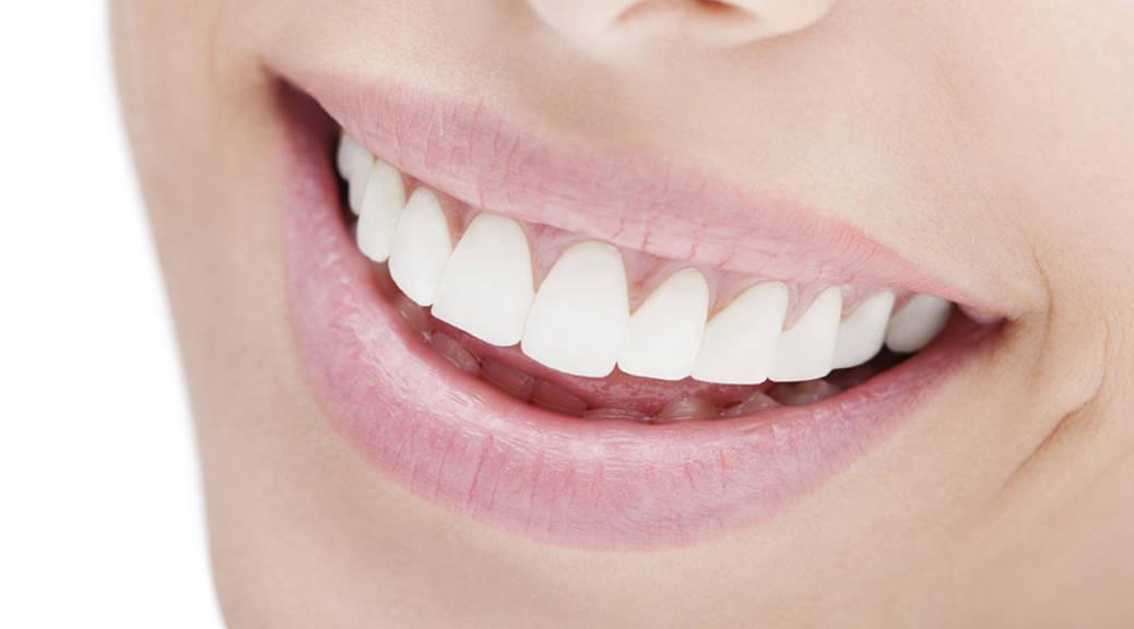 Macchie bianche sui denti ?