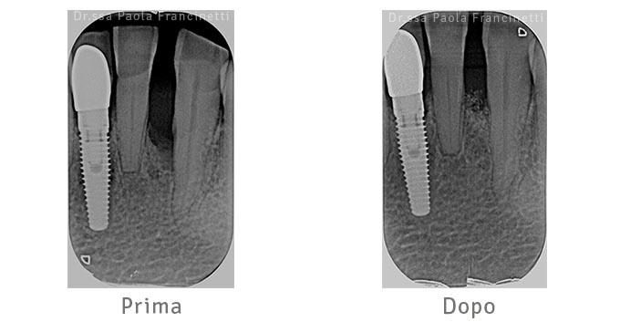 rigenerazione parodontale
