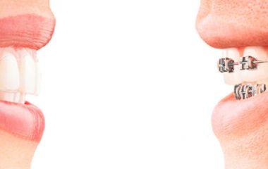 Invisalign: scopri l'apparecchio per i denti invisibile