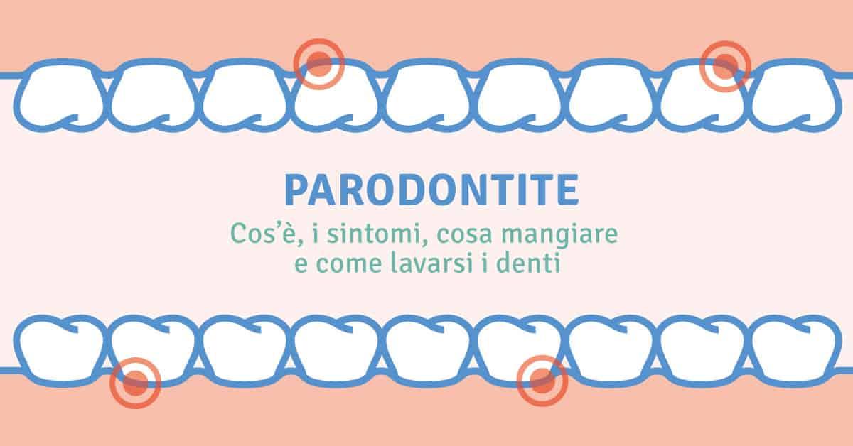 Parodontite: cos'è, i sintomi, cosa mangiare e come lavarsi i denti
