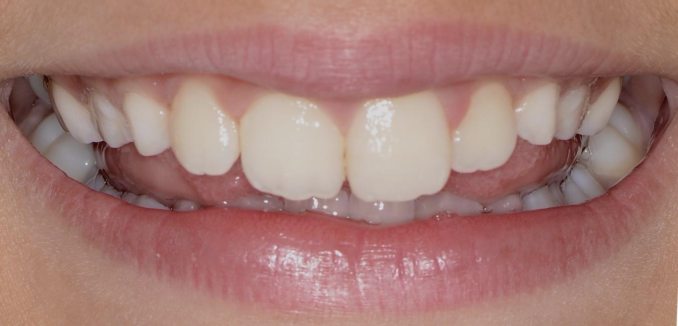 estetica dentale Adec milano maria barros