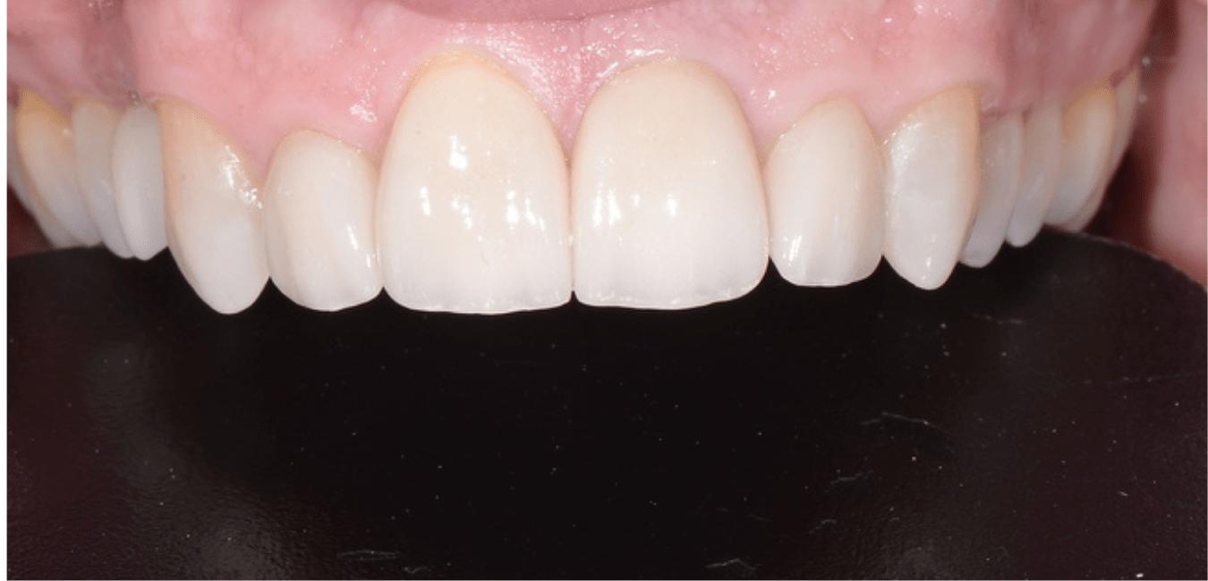 estetica dentale Adec milano barros