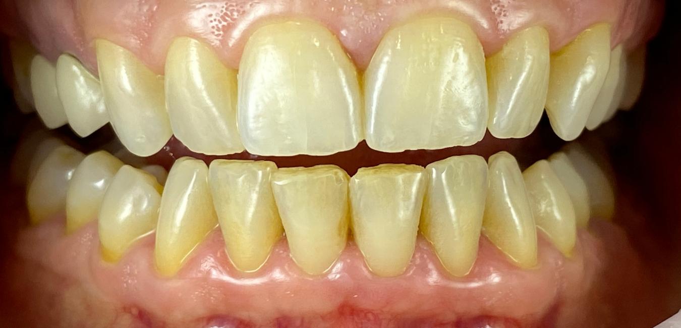 estetica dentale Adec sbiancamento milano eleonora meo