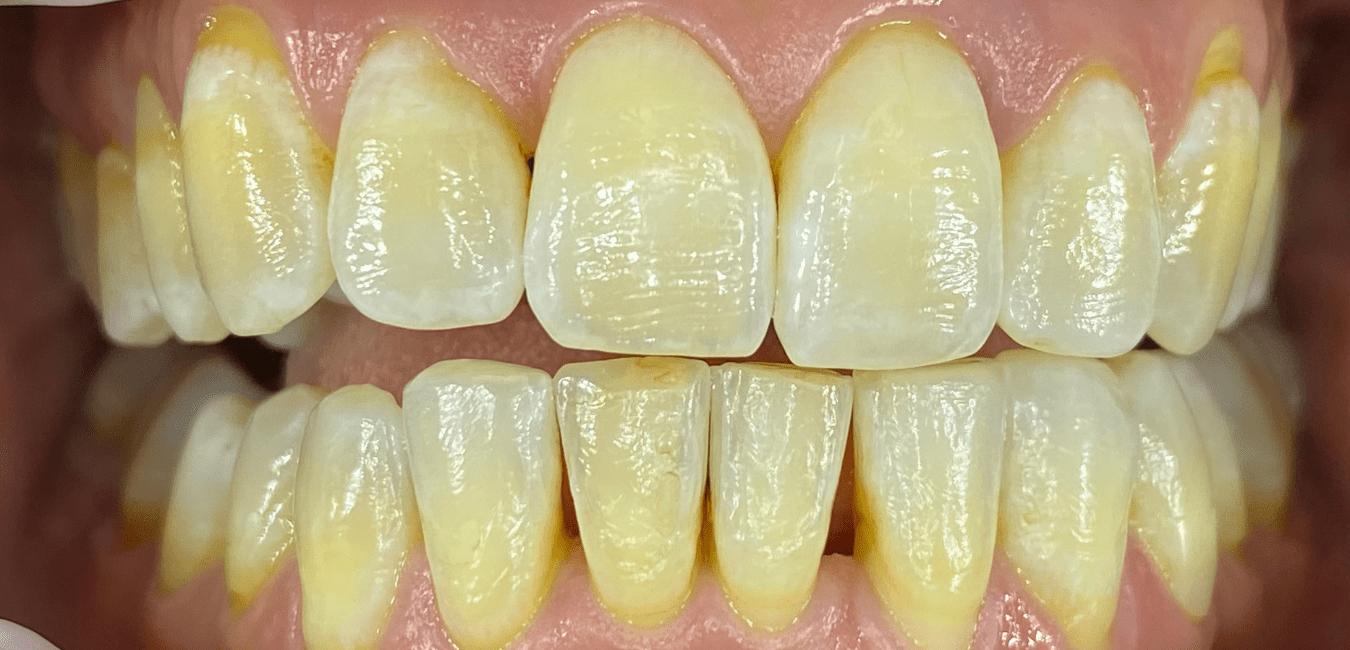 estetica dentale sbiancamento Adec milano eleonora meo
