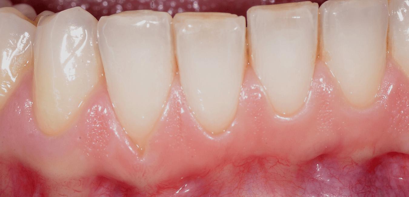 estetica dentale Adec milano barros chirurgia parodontale francinetti
