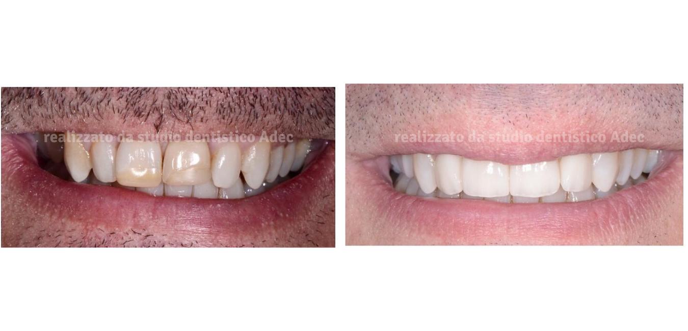 Casi estetica dentale Adec