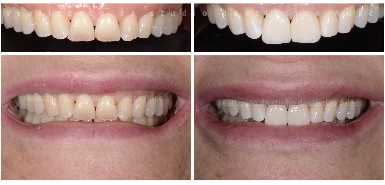 estetica dentale Adec