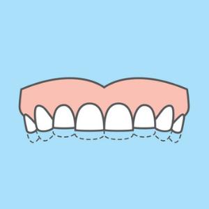 trattamento usura dentale a milano