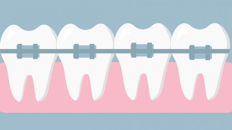 ortodonzia milano: adec