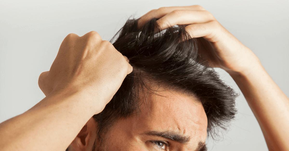 Caduta dei capelli: cause e prevenzione