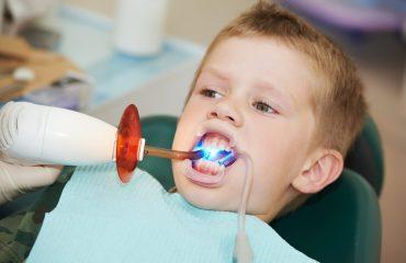 Sigillature denti dei bambini: tutto quello che devi sapere