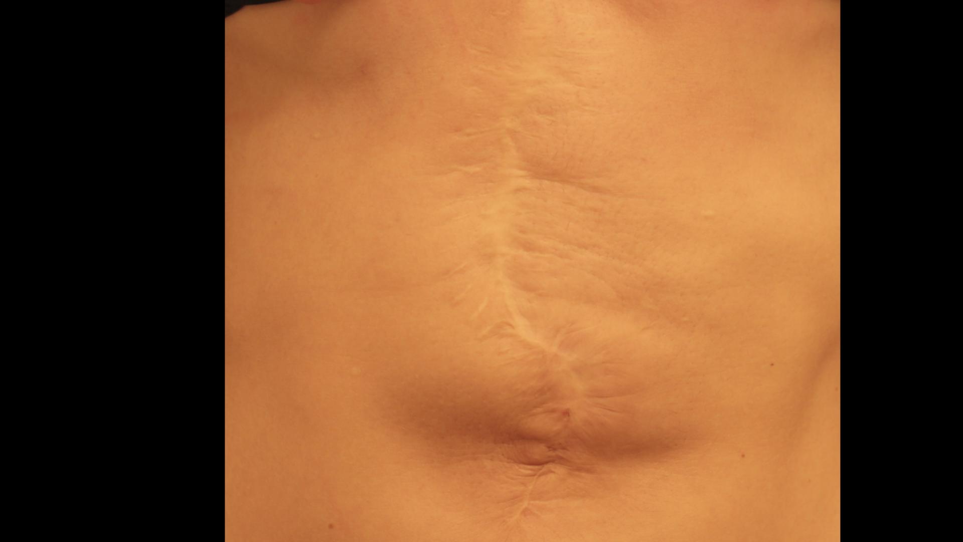 smagliature cicatrici biodermogenesi milano