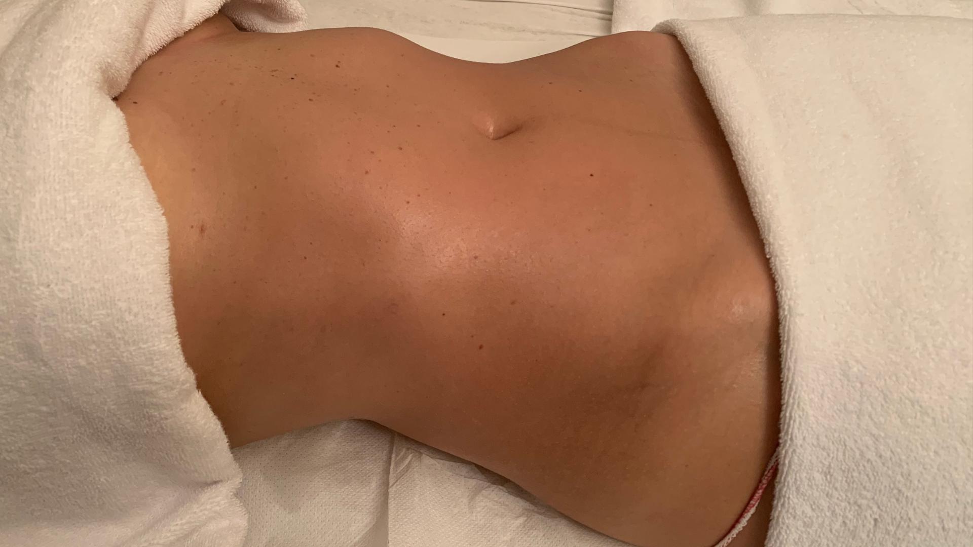 https://www.adec.it/le-nostre-specialita/smagliature-cicatrici-biodermogenesi-milano/