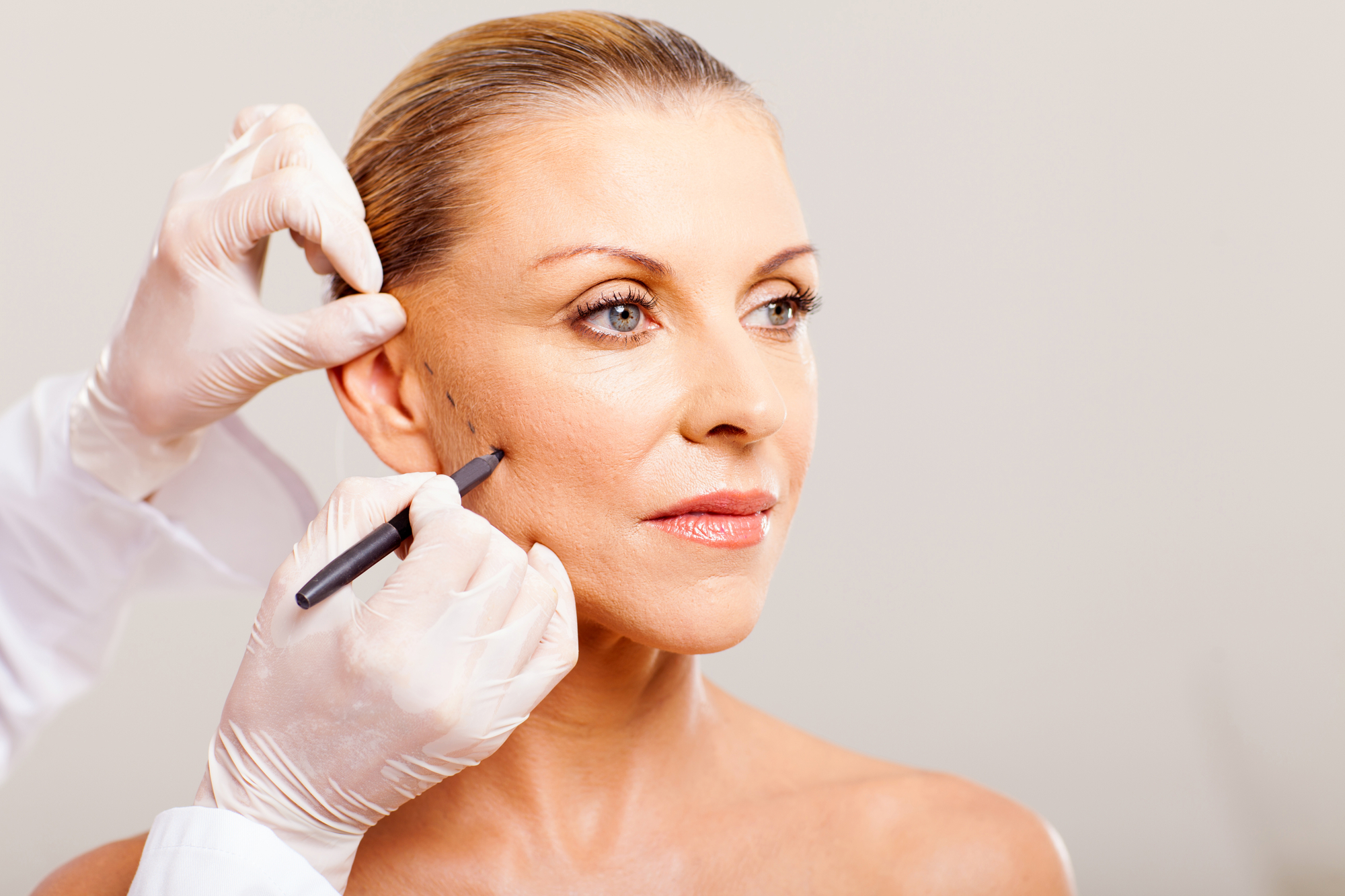 fili di biostimolazione ringiovanimento viso collo milano