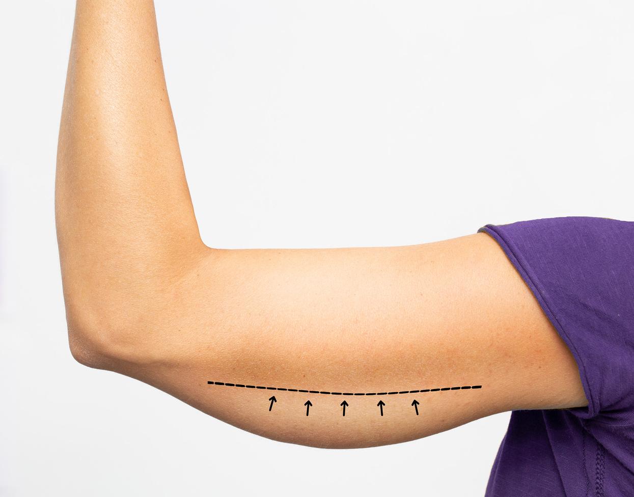 fili biostimolazione definzione volumi corpo milano
