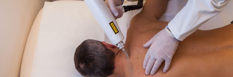 rimozione tatuaggi milano laser