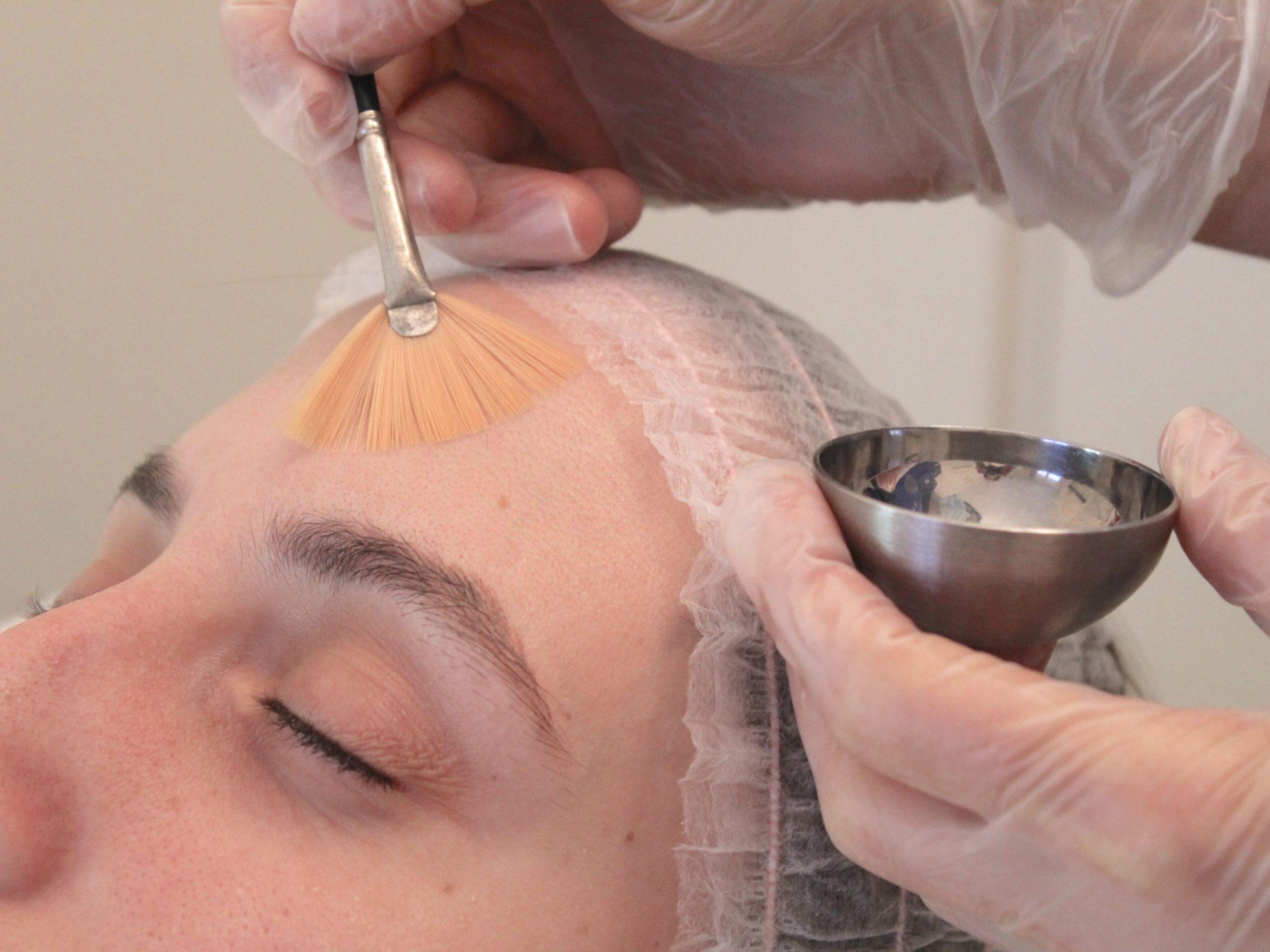 pelling viso medicina estetica milano